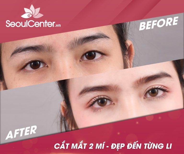 Cắt mí mắt cho đôi mắt 2 mí to tròn, long lanh là phương pháp làm đẹp mắt mẹ có thể áp dụng cho con khi con lớn lên