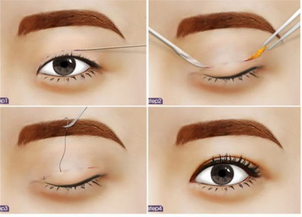 Bấm mí mắt giúp bạn có được đôi mắt hai mí vô cùng tự nhiên