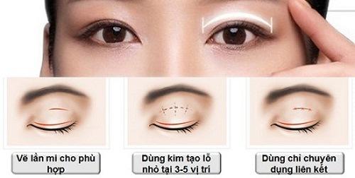 Bấm mí mắt phù hợp cả nam nữ