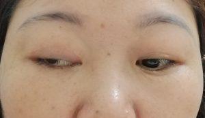 Sau quá trình cắt mí, vùng mắt có thể bị sưng, viêm (Ảnh: Internet)