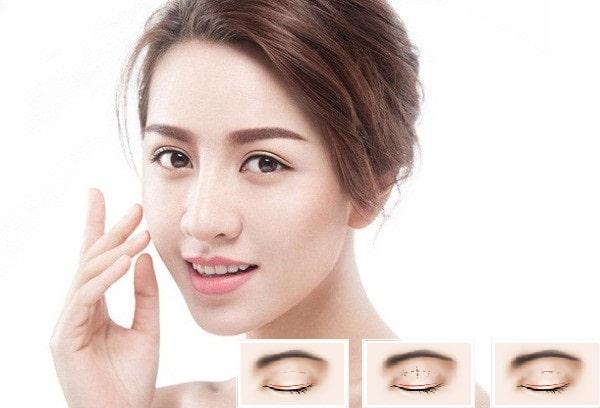 Cắt mí eye lift – Giải pháp tuyệt vời cho đôi mắt của bạn