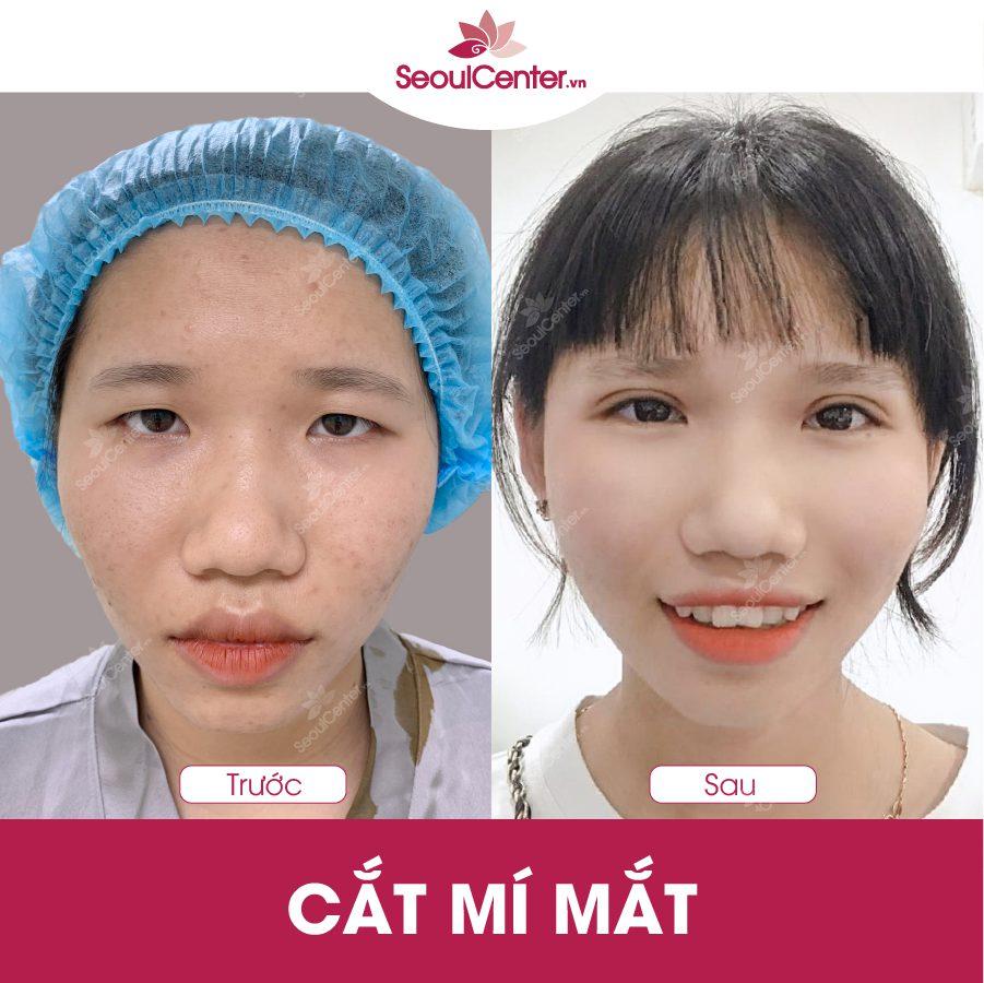 Hình ảnh khách hàng trước và sau khi cắt mí mắt tại SeoulCenter.Vn