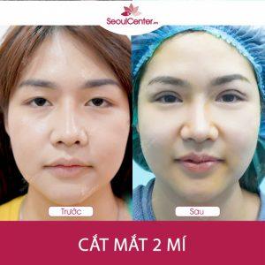 SeoulCenter.Vn là một trong những thẩm mỹ hàng đầu trong lĩnh vực cắt mắt